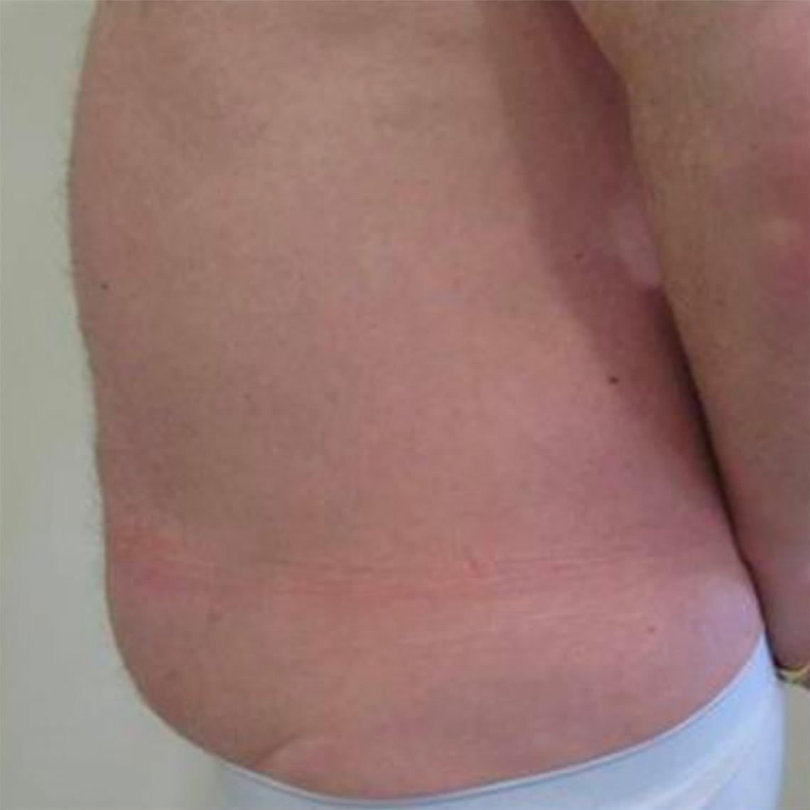 After-Männlich, 55 Jahre, 2 Behandlungen, 8 Wochen später