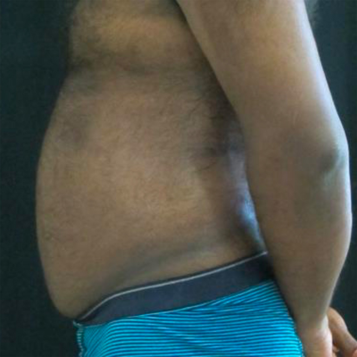 After-Männlich, 41 Jahre, 1 Behandlung, 8 Wochen später