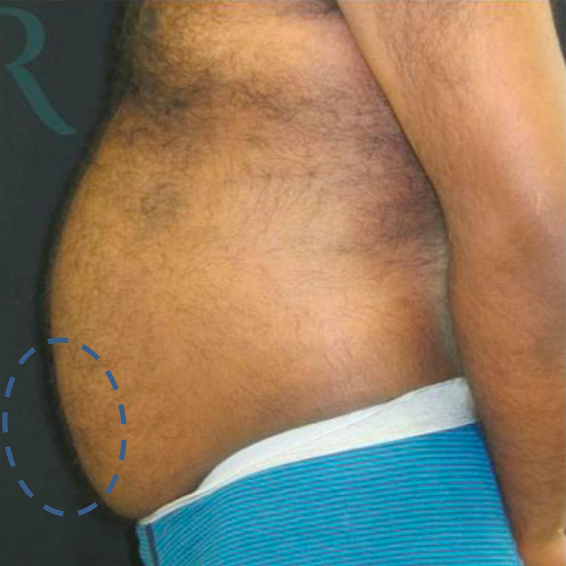 Before-Männlich, 41 Jahre, 1 Behandlung, 8 Wochen später